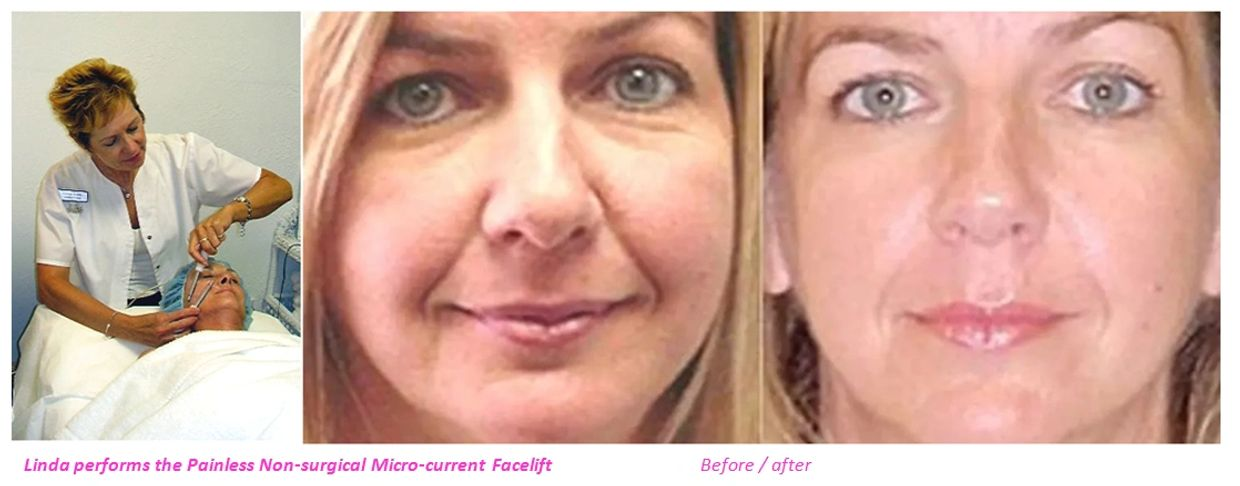 Non-surgical micro-current facelift before / after