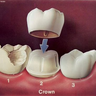 An example of a crown at Jonathan Loughlin Dental.
