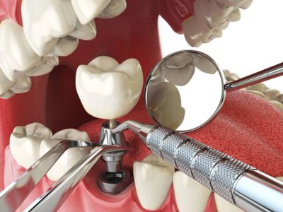 Dental Implants Carnegie