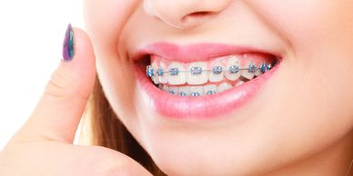 braces, ortho braces, invisalign, clear aligners, clearcorret, smile direct club, crooked teeth