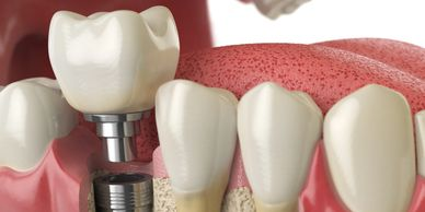 dental implants, dental screws, tooth replacement