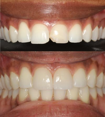 Transform smiles with porcelain veneers