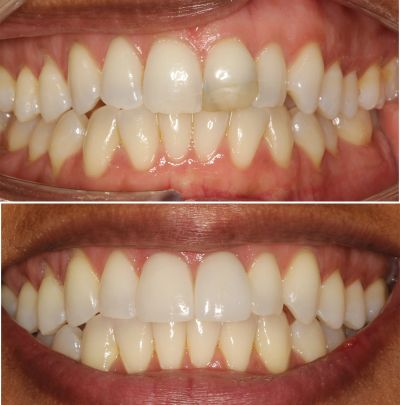 Beautiful smiles created with Invisalign and porcelain veneers