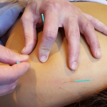 Acupuncture being done on upper back and shoulder