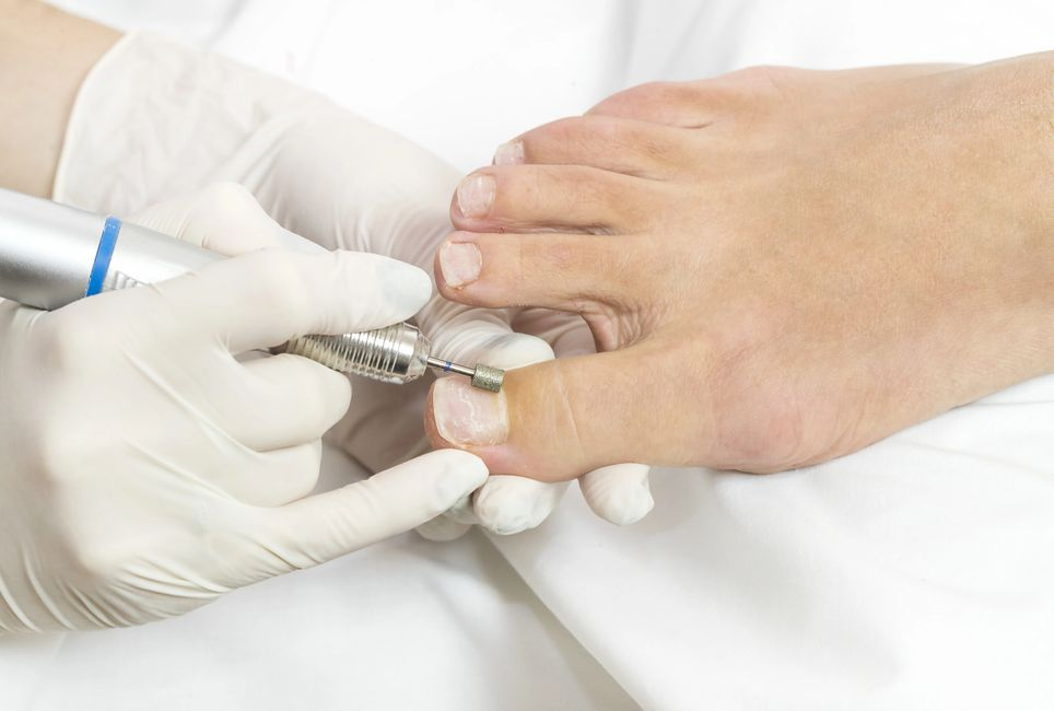 Routine footcare include debribing of toenails, trimming corns and calluses