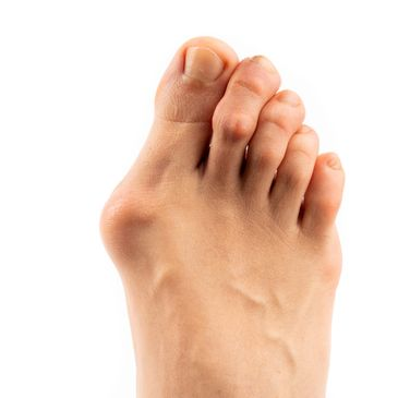 Hammertoes, bunions and over-lapping digits.