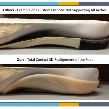 ArchMasters Custom Foot Orthotics are supportive and made by our podiatrist Dr. Sables; CMO