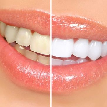 Located in Forest Hills NY our office offers a variety of teeth whitening services  for your family