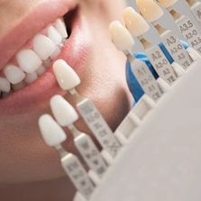 As top rated dentist in Forest Hills NY we offer a whole range of cosmetic dental services