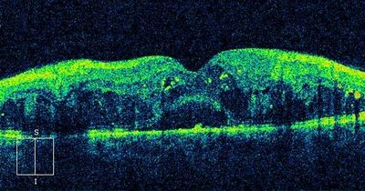 OCT of diabetic macular edema