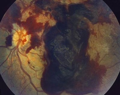 PDR with vitreous hemorrhage