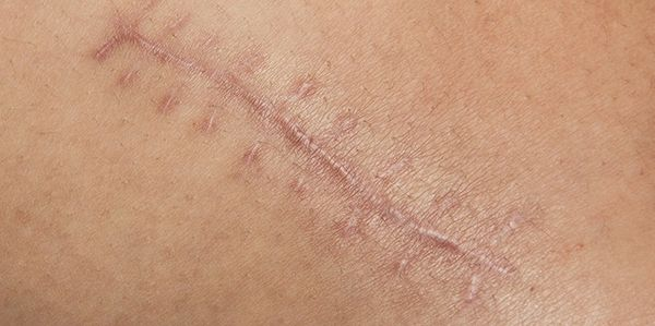 Scar tissue therapy