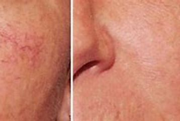 thread vein removal radstock