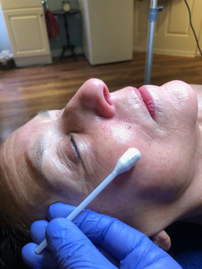 Facial Peels at Unlimited Potential - a skincare studio in Guilford, CT