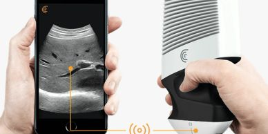 Tiny ultrasound machine that supports M-mode, color, and pulse doppler scans