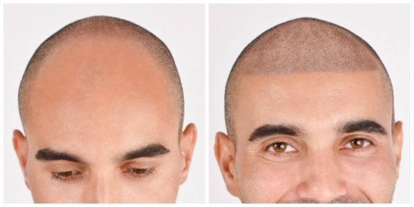 Scalp Micropigmentation for men in white Irish Salon in Clearwater, Tampa Bay, Palm Harbor, Oldsmar