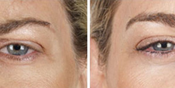Bioidentical Hormone Replacement Facial Aesthetics Dermal Fillers IV Nutrients