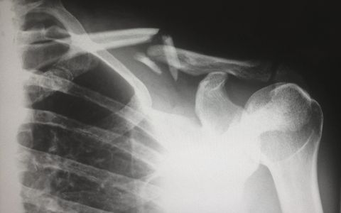 X-ray image of clavicular fracture.