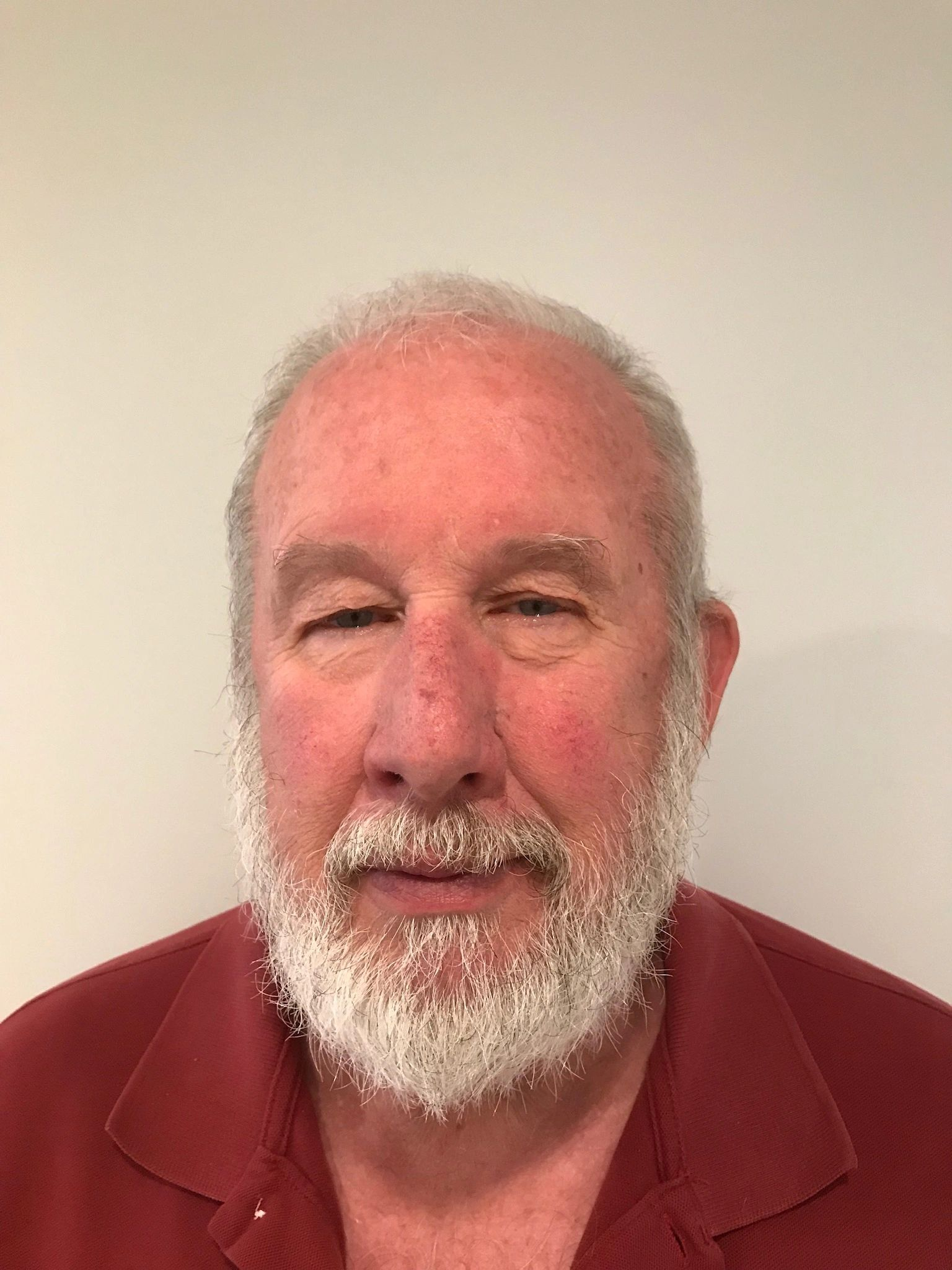 Earl Robertson: ABC Certified Prosthetist, Licensed Orthotist and Hospitalist. Earl is a Marine Veteran with over 43 years of O&P experience.