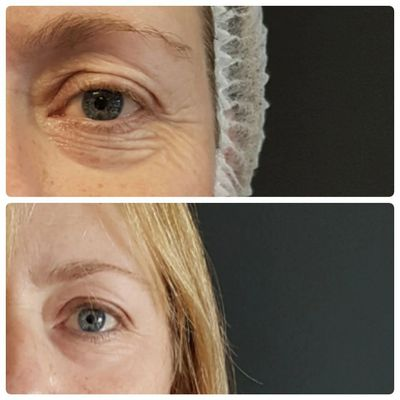 SKIN TIGHTENING & EYELID LIFTING