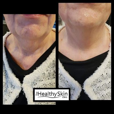 FUSION NECK AND JOWL LIFT
