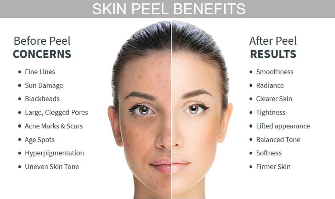 Chemical peel before and after image