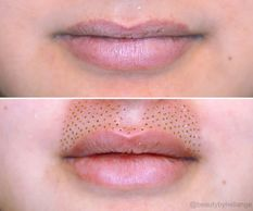 lip flip plamere plasma pen fibroblast treatment skin tightening