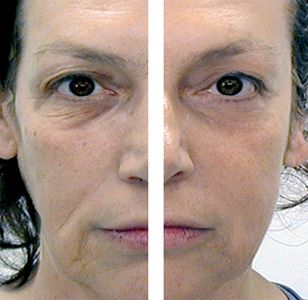 Anma facial massage tool before and after