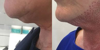 Plamere Plasma Fibroblast treatment for double chin and tighten skin on the neck
