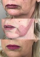 Plamere Plasma Fibroblast treatment reduce jowls  and tighten skin