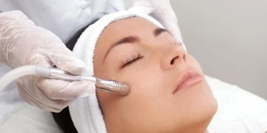 woman gettin a microdermabrasion treatment