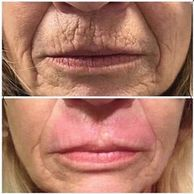 Plamere Plasma Fibroblast treatment on the upper lip for smokers lines