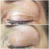Plamere Plasma Fibroblast treatment on the upper eyes