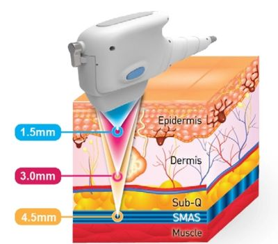 HIFU is the only non-invasive treatment that targets the smas layer without cutting the skin.