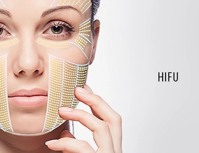HIFU Facelift and body sculpting
