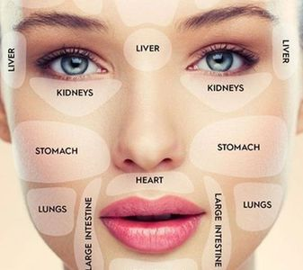 Acne Causes and Management of Acne