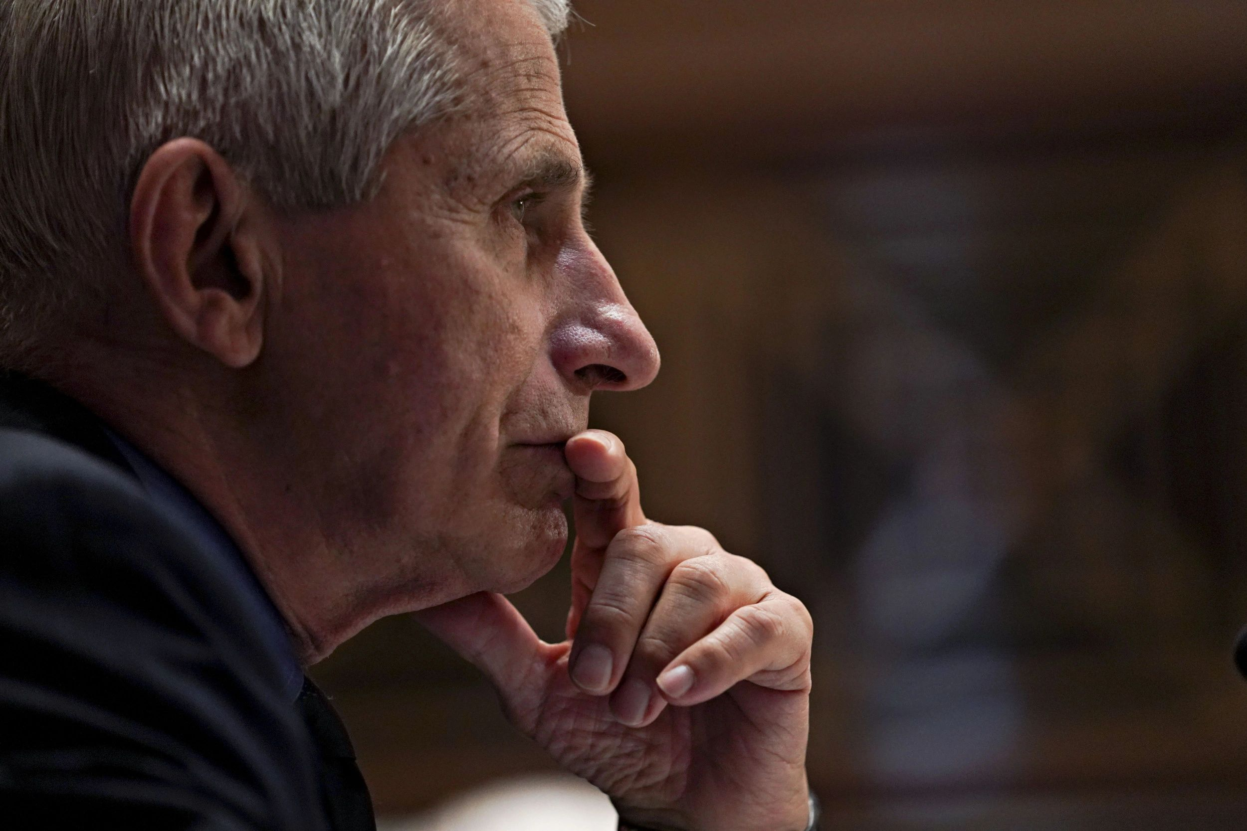 Fauci says conceivable 'COVID came from cave where miners fell