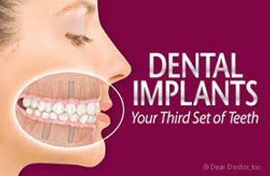 dentist wilmington CEREC one visit crown implants CBCT dentures extraction root canal whitening