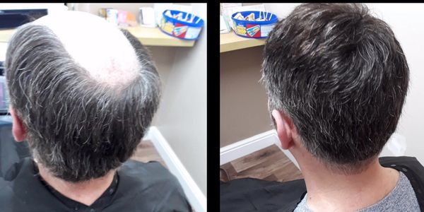 Mens hair replacement durham