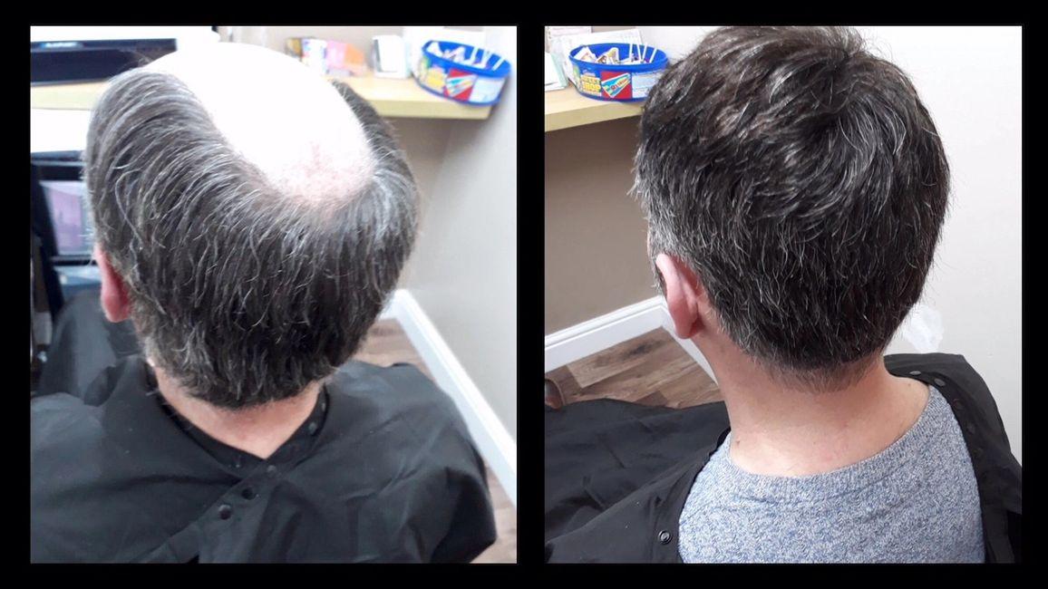 New U Hair Hair Replacement Hair Extensions Durham Hair