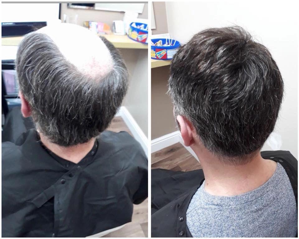 Men s Glue On Hair Pieces abfec0543964