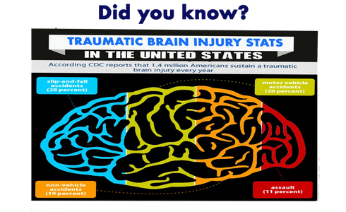 Traumatic brain injury lawsuit funding