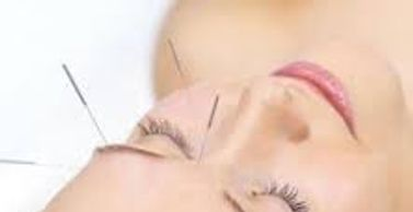 Eye Treatment, Acupuncture, Acupressure, Herbal Creams
