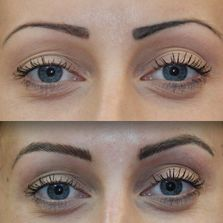 Fix my tattooed brows.  My permanent makeup brows faded blue, pink, or grey.  Need to alter color