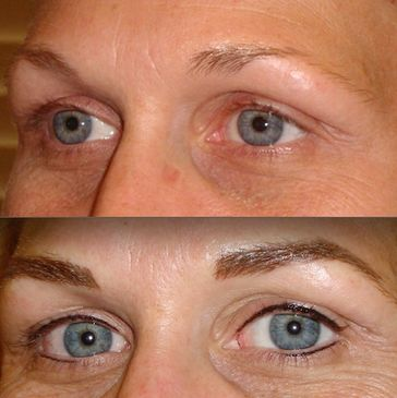 Permanent makeup eyeliner.  Eyes look small and have no lashes.  Make eyes look bigger.