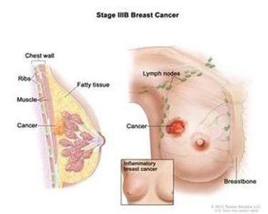 stage  3B breast cancer awareness information Thuggizzle Cares