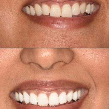 Teeth Whitening in Birmingham at the works spa and fitness Oldbury