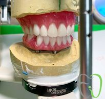 Edmonton Dentures|Dental Implants|All on four Dentures|Implant Dentures|Nobel Trefoil|Denturist