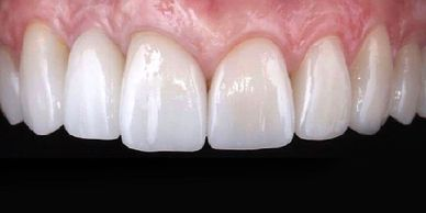 tijuana dentistry clinica deladent perfect teeth