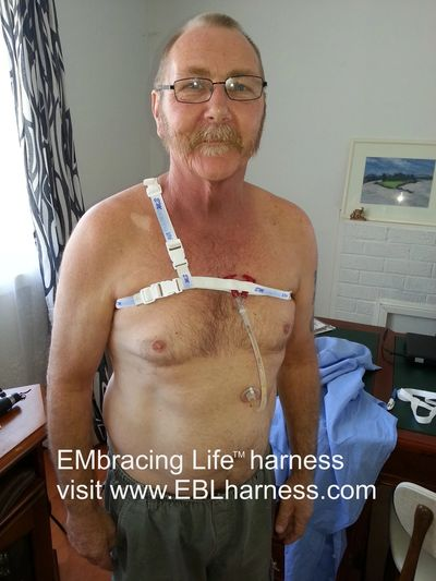 Catheter or PEG Feeding Tube Holder at Embracing Life™ harness - eblharness.com
